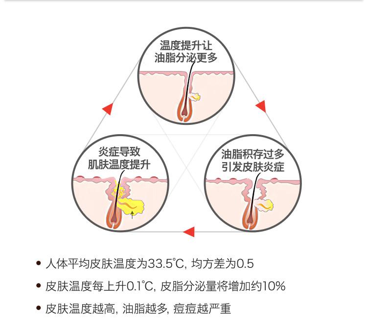 科瑞缇Dr.Peng皮肤专家提出皮肤温度越高,油脂越多,痘痘越严重
